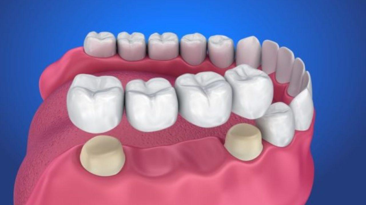 cầu răng sứ là gì